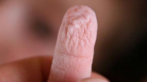 Bạn có biết: Vì sao đầu ngón tay nhăn nheo khi ngâm vào nước?