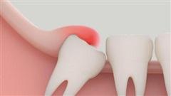Viêm nướu (lợi) trùm răng khôn