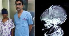 15 năm sau khi phá thai, bà mẹ choáng váng khi phát hiện con vẫn còn trong bụng và hiện tượng bào thai 'hóa đá' hiếm gặp