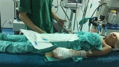 Thiếu niên bị nát tay, vỡ nhãn cầu cả 2 mắt sau tiếng nổ lớn