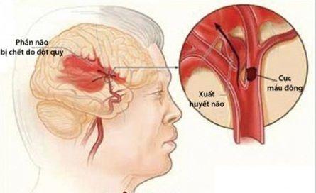 Thuốc hạ áp amlodipine giảm 18% nguy cơ đột quỵ