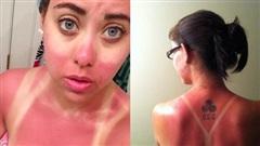 18 thảm cảnh mang tên cháy nắng mùa hè chỉ nhìn thôi cũng thấy đau xót lắm rồi
