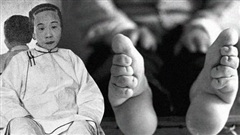 Tục bó chân của phụ nữ Trung Hoa cổ đại: Nỗi đau từ thể xác đến tinh thần không từ ngữ nào có thể diễn đạt trọn vẹn