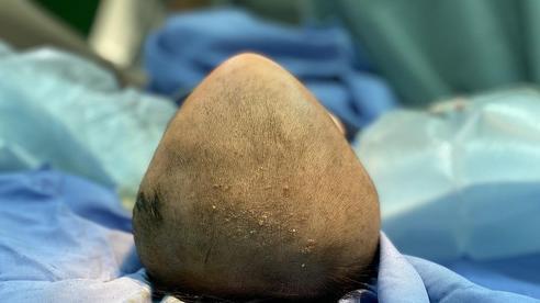 Bệnh nhi 6 tháng tuổi mắc chứng hẹp sọ bẩm sinh thể đầu hình tam giác hiếm gặp đã được phẫu thuật thành công