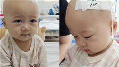 Xót xa bé trai 14 tháng tuổi liền lúc mắc 2 bệnh ung thư, nhìn con cười mà bố mẹ không cầm được nước mắt