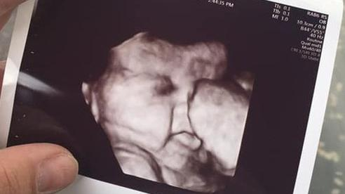 Bà mẹ sốc khi thấy 1 đám tóc đen ở thai nhi tuần 34 nhưng khi sinh con ra càng bất ngờ hơn