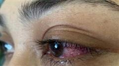 Tưởng đau mắt đỏ, bệnh nhân suýt mù vì bệnh rò động mạch màng cứng xoang hang