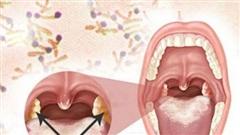 Cảnh giác với nhiều biến chứng nguy hiểm của bệnh bạch hầu!