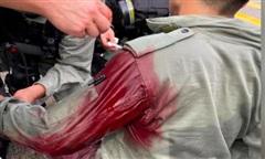 Hong Kong bắt nghi phạm đâm trọng thương cảnh sát rồi chạy trốn
