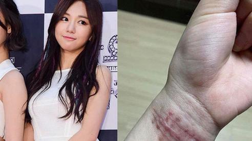 NÓNG: Nữ idol Hàn bị đàn chị cùng nhóm bắt nạt suốt 10 năm, hoảng sợ tới mức nhiều lần cắt cổ tay tự tử