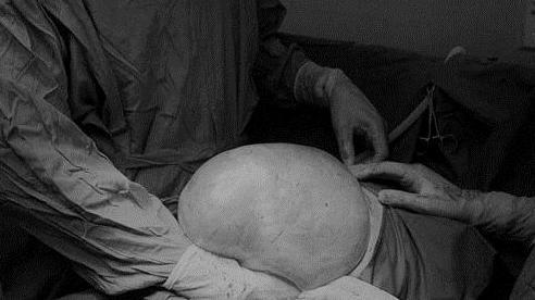 Người phụ nữ có khối u buồng trứng nặng gần 9 kg