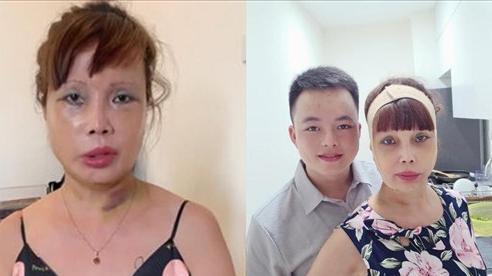Diện mạo mới nhất của 'cô dâu 62 tuổi' sau thời gian bị biến chứng do phẫu thuật thẩm mỹ làm căng da mặt