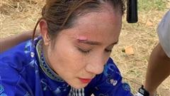 Đồng nghiệp thương xót 'bà mối' Cát Tường bị thương trên trường quay