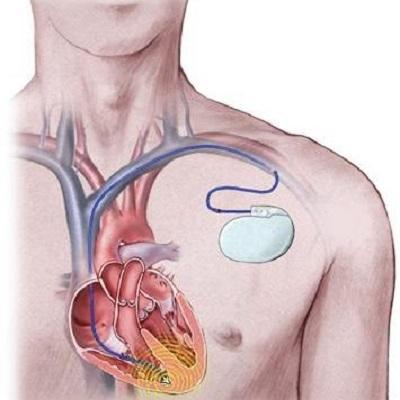 Thuốc trị rung tim có thể làm giảm nhu cầu cấy máy khử rung