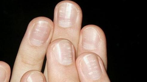 Thuốc nào trị vảy nến móng tay?