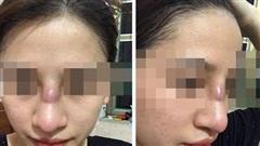 Nâng mũi bằng phương pháp đặt sụn silicon tại Spa, cô gái 19 tuổi bị nhiễm trùng, phải rút sụn, bơm rửa vệ sinh hốc mũi hàng ngày