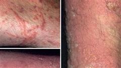 Dấu hiệu, cách phòng tránh, điều trị viêm da tiếp xúc do kiến ba khoang