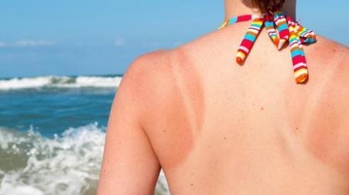 Có thể bôi thuốc gì khi bị bỏng nắng?