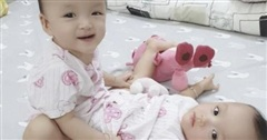 Hai bé gái song sinh dính nhau vùng bụng, khỏe mạnh đùa giỡn trước ngày thực hiện ca phẫu thuật định mệnh