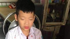 Vụ người đàn ông đấm hộc máu mồm bé học sinh lớp 1 để 'trả thù' cho con: Nhà trường chính thức lên tiếng