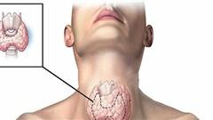 Sau 25 năm ăn muối iốt, bệnh tuyến giáp bùng phát tại TQ: Sai lầm lớn rất nhiều người mắc