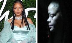 Xuất hiện với đôi mắt bầm tím và vùng trán sưng vù, Rihanna dính nghi vấn bị bạo hành như thời yêu Chris Brown