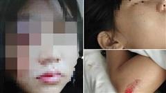 Cô gái trẻ bị chồng hành hung hỏng 1 bên mắt, dọa 'chôn sống' ngay trong ngày Thất tịch