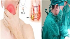 Ung thư tuyến giáp chiếm 90% bệnh nhân ung thư nội tiết, dấu hiệu âm thầm nhưng có thể điều trị được