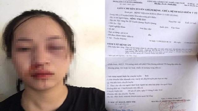 CSGT Tuyên Quang lên tiếng sau khi bị tố dùng gậy vụt vào mặt người phụ nữ vì không chấp hành hiệu lệnh dừng xe
