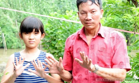 Chuyện lạ miền Tây Kỳ cuối: Gia đình 3 thế hệ có tay, chân thừa ngón