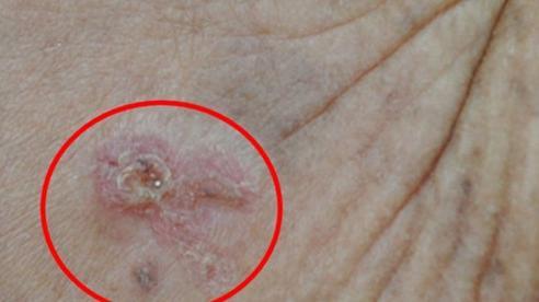 Chủ quan với vết ban đỏ trên trán, người phụ nữ không ngờ đó là dấu hiệu bệnh ung thư