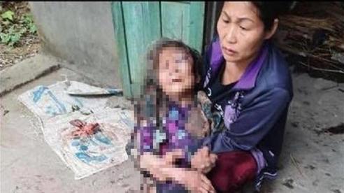 Bà cụ gần 90 tuổi bị nam thanh niên lẻn vào nhà đánh, châm lửa thiêu sống cướp hơn 21 triệu đồng: Nạn nhân đang hoảng loạn