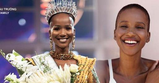 Hoa hậu 'lạ' nhất trong lịch sử: Mỹ nhân trọc đầu sở hữu nhan sắc hoàn mỹ, nhưng sức hút tuyệt vời nhất lại đến từ học thức cùng nụ cười tỏa nắng