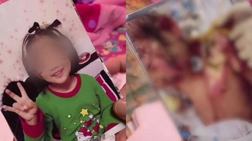Bé gái 6 tuổi 'thân tàn ma dại' vì bị mẹ ruột và gã nhân tình bạo hành suốt 3 tháng, bố ruột khi biết chuyện đã không nhận ra con mình