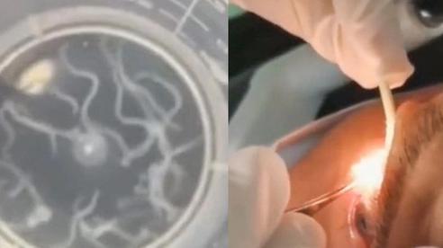 Kinh hoàng: Bác sĩ lấy 20 con giun đang 'uốn éo' ra khỏi mí mắt của người đàn ông