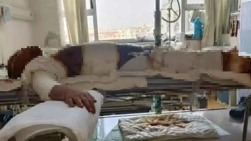 Bất ngờ nghe tin dữ từ quê nhà, con trai chạy về gục ngã trước hình ảnh mẹ trong bệnh viện, hé lộ tội ác man rợ của cha dượng