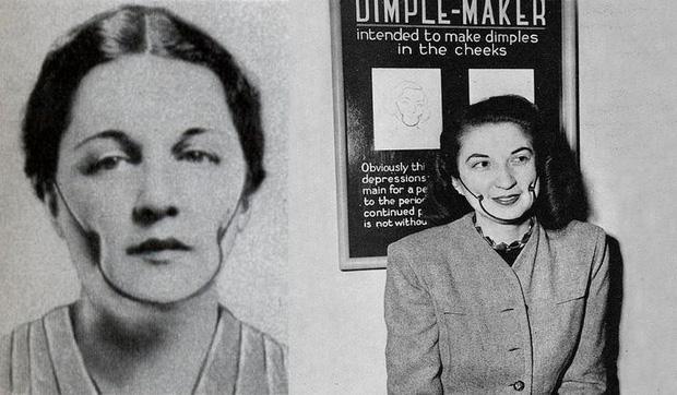 Ngày xưa nếu các cô gái chàng trai thích duyên thắm duyên bởi đôi má lúm thì không cần phẫu thuật mà dùng công cụ như trong hình. Tuy nhiên, chỉ là quảng cáo thôi, phát minh năm 1936 này không những không mang đến cho bạn hai má lúm đồng tiền mà còn làm bạn có khả năng bị ung thư.
