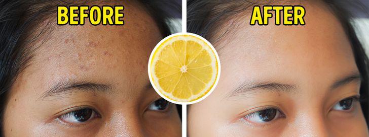 Nước chanh là một chất có tác dụng làm se da tự nhiên. Nó làm căng da chảy xệ và chống lại các vết thâm.