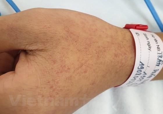 Một trường hợp mắc bệnh sốt xuất huyết tại Bệnh viện Bạch Mai. (Ảnh: T.G/Vietnam+)