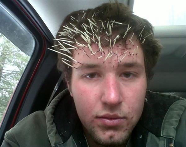 3. Tôi thử ngó đầu vào 1 cái lỗ trên cây để nhòm, lúc rút đầu ra thì tôi bị như vầy. Không biết có làm sao không mọi người ơi?