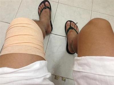 MC Thành Trung từng bị đứt dây chằng chân trái và phải phẫu thuật.
