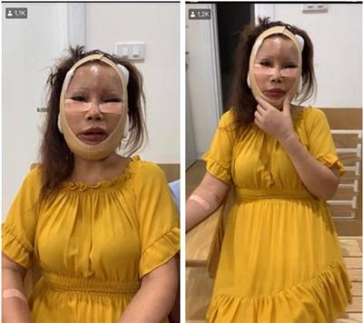 Sau ca phẫu thuật căng da mặt, 'cô dâu 62 tuổi' gặp biến chứng.