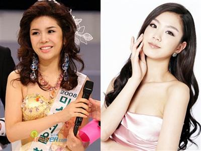 'Thảm họa nhan sắc' Seon Nari – Miss Korea 2008 kém xa Á hậu Seo Seol Hee