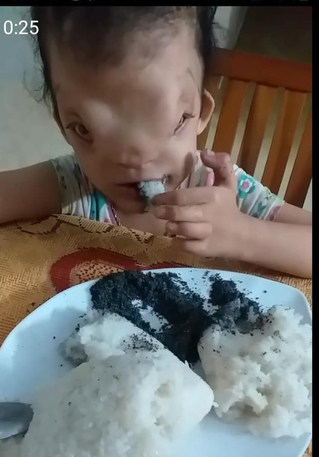 Hôm nay bé Hoàng Dung đã có xôi để ăn. Ảnh: CHL.