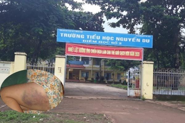 Trường Tiểu học Nguyễn Du nơi xảy ra sự việc cô giáo đánh học sinh