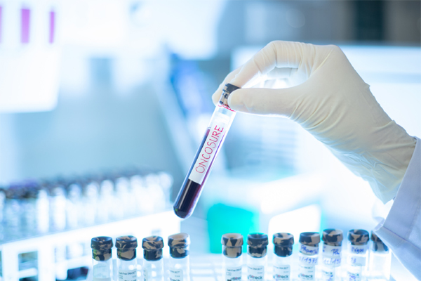 Tầm soát sớm các loại ung thư có yếu tố di truyền bằng xét nghiệm gen sẽ giúp chủ động hơn trong việc dự phòng và chăm sóc sức khỏe
