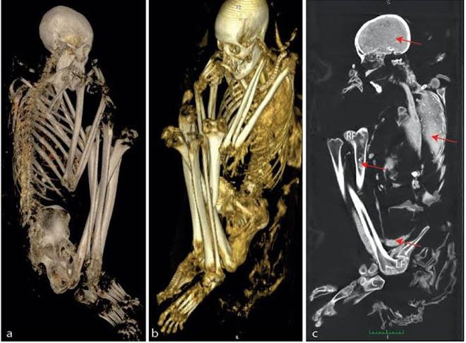 Những biến dạng về mặt giải phẫu cùng kết quả ADN đã vô tình 'tố cáo' nguồn gốc của các xác ướp. Ảnh minh họa: The Conversation