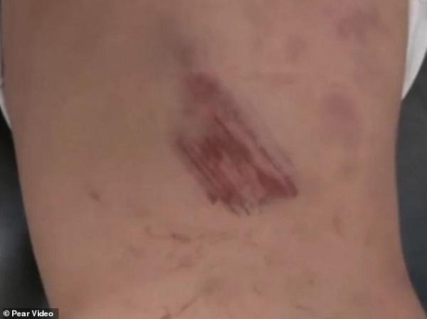 Viên Viên được đưa về nhà trong tình trạng cả người dính đầy bùn đất và máu kèm theo nhiều vết bầm tím.