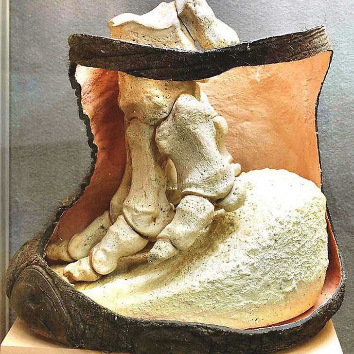 Cáu tạo xương chân của một chú voi.