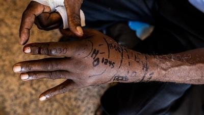 Nhà sinh vật học Baldé Mamadou Cellou thí nghiệm nọc độc trên cơ thể để hiểu cảm giác đau đớn của những người dân lao động nghèo bị rắn độc cắn. Ảnh: National Geographic